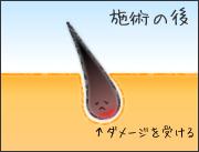 脱毛ステップ3.jpg