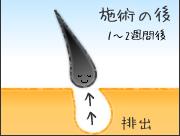 脱毛ステップ4.jpg